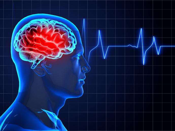 Inpatient rehabilitation can help in Stroke Recovery