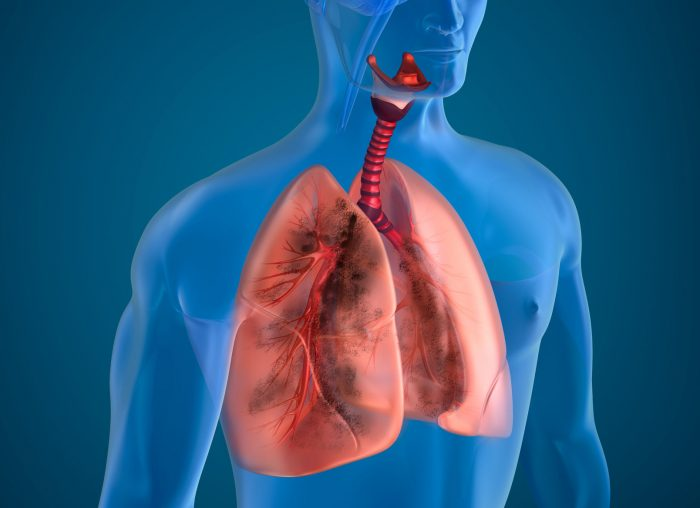 Government Reiterates Tb Elimination Target Of 2025