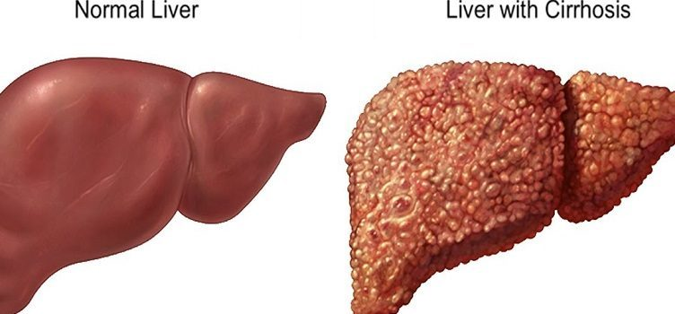 over 10 lakh indians diagnosed with liver cirrhosis each year